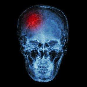 traumatic brain injuries, Westport Personal Injury Attorney